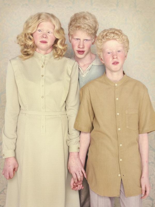 albino1