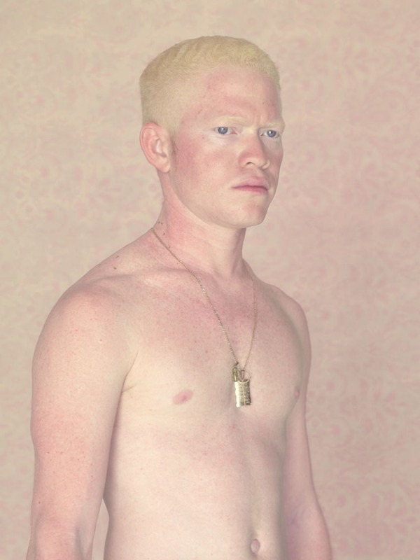 albinos-lacerda.-jpg