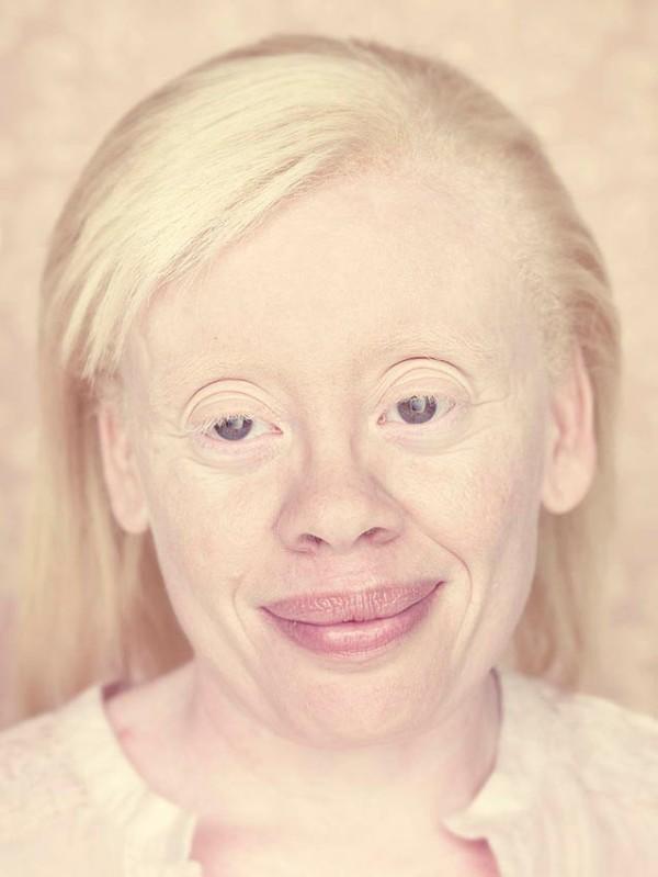 gustavo-lacerda-albinos-4