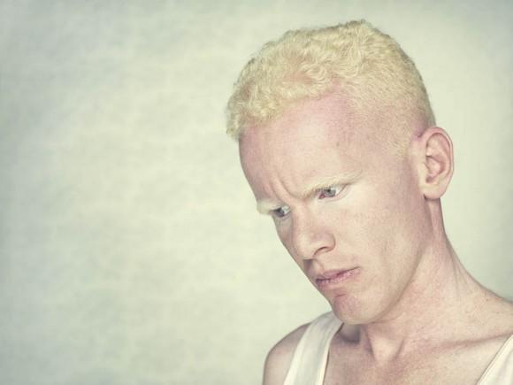 Gustavo-Lacerda-Albinos-5-580x435