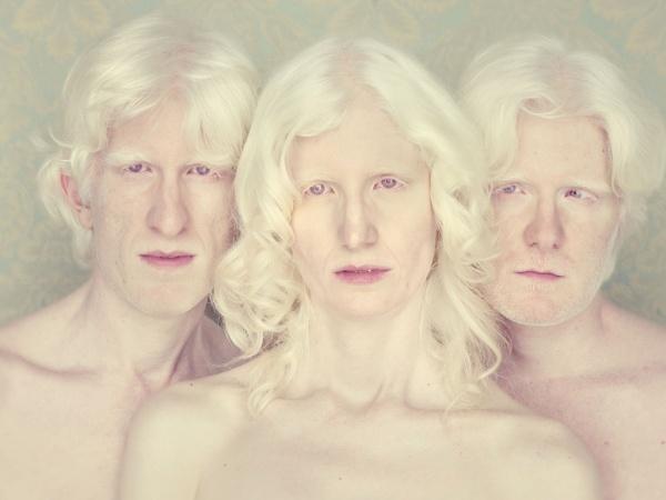 gustavo-lacerda-albinos