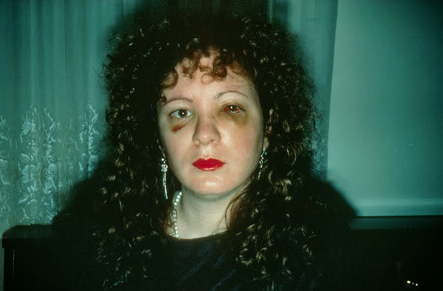 Nan Goldin - Self-Portrait after suffering domestic abuse, 1978